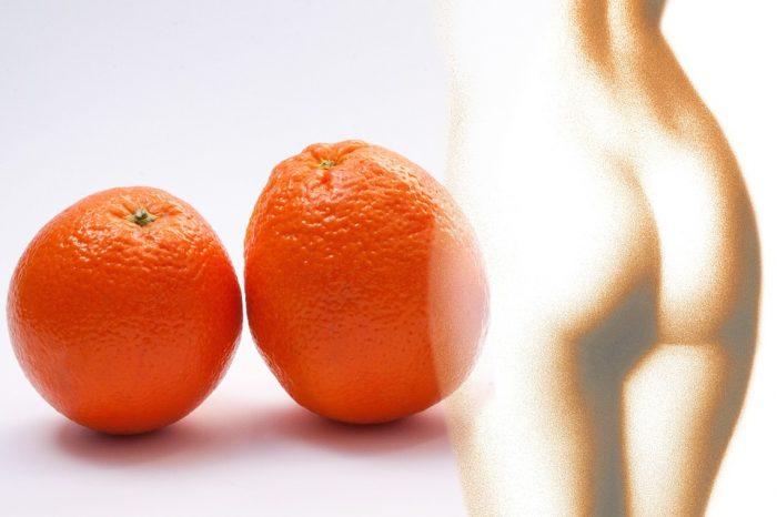 Cellulite e Gambe pesanti? Scopri la linea Natural Benex di Erboristeria Magentina